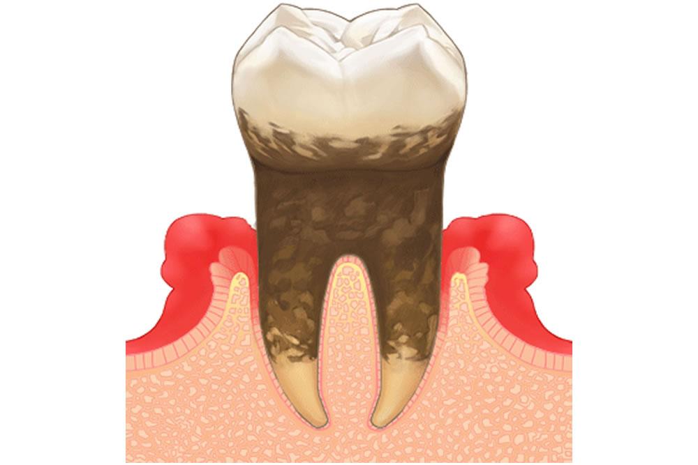 歯周病に効果的